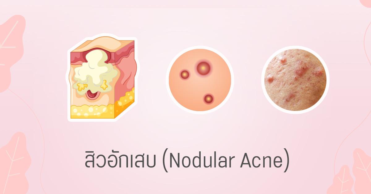 สิวอักเสบ nodular acne