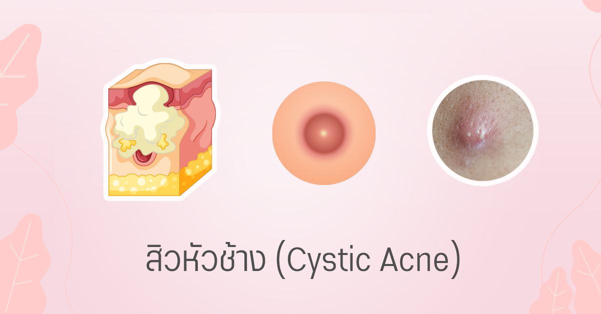 สิวหัวช้าง cystic acne