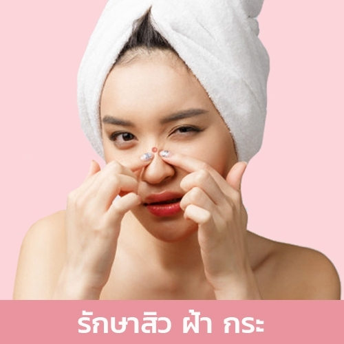 รักษาสิว ฝ้า กระ acne treatment j young clinic