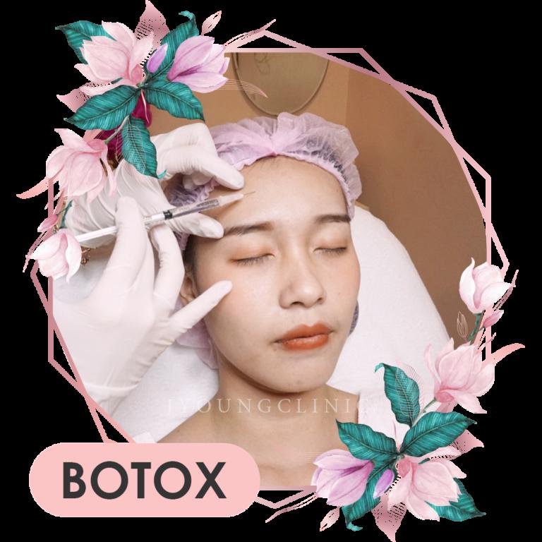 โบท็อกหน้าเรียว botox j young clinic เจยัง คลินิก