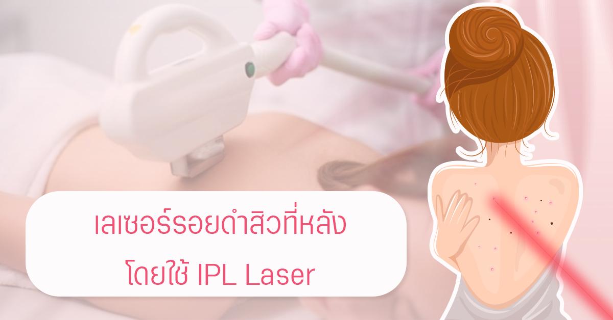 IPL Laser